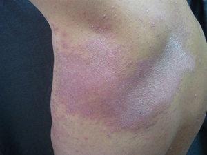 enfermedades de la piel fotosensibilidad