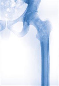enfermedad de paget del hueso sintomas