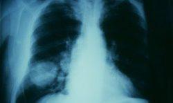 """""""Desarrollan un nuevo análisis de sangre para detectar precozmente el cáncer de pulmón no microcítico"""
