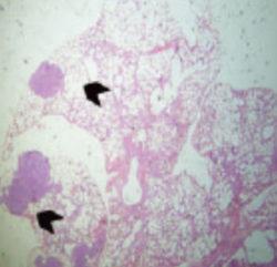 vacuna cáncer de mama
