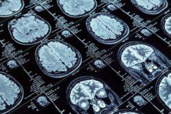 """""""Un análisis de sangre permitirá identificar el Alzheimer antes de que aparezcan los síntomas"""