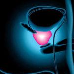 terapia focal crioterapia