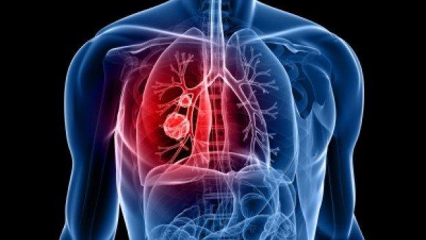 Casos de hipertensión arterial en todo el mundo