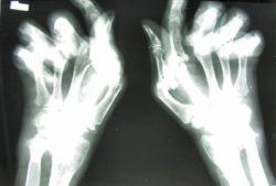 """""""Identifican un nuevo gen asociado con la gravedad de la artritis reumatoide"""