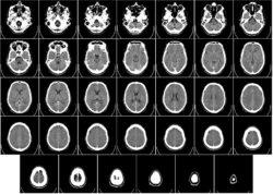 """""""Crean células madre de cáncer cerebral mediante ingeniería inversa para hallar objetivos para el tratamiento"""