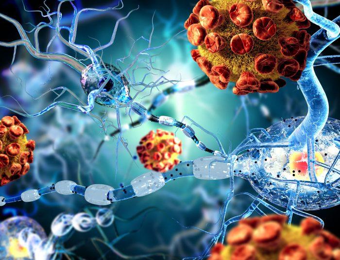 Nuevo estudio sobre Alzheimer en la UAM