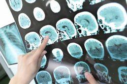 """""""El interferón beta aumenta la supervivencia en pacientes con esclerosis múltiple"""