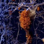 proteina tau, alzheimeralmacenamiento lisosómico