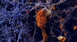 """""""Nueva hipótesis sobre la causa del Alzheimer, basada en el almacenamiento lisosómico en el cerebro"""