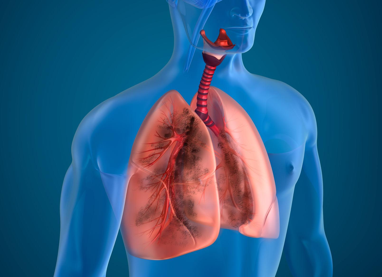 """""""Alectinib es autorizado por la FDA como tratamiento en primera línea para un subtipo de cáncer de pulmón"""