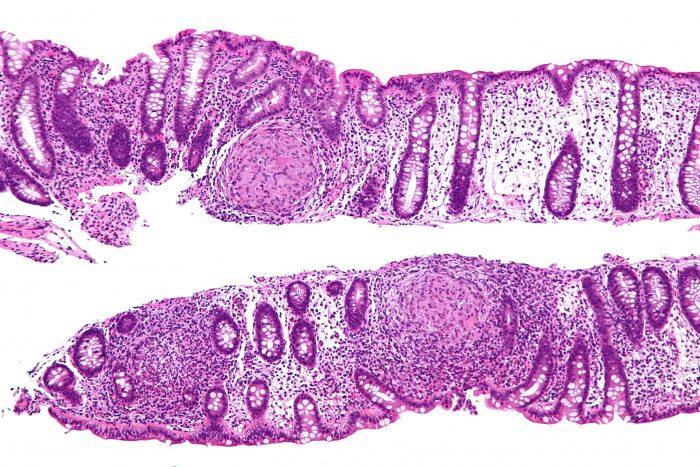 Cancerul de colon – Spitalul Universitar de Urgenţă Militar Central Dr. Carol Davila