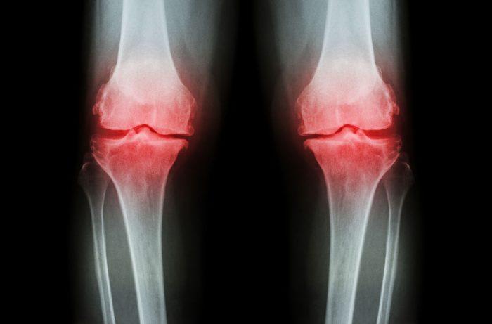 efecto teriparatida en fracturas