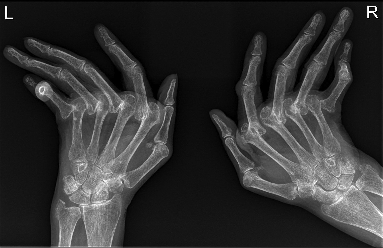 remedios para la artritis reumatoide severa