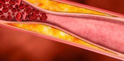 """""""El aceite de camelina ayuda a reducir el colesterol en personas con alteraciones metabólicas de la glucosa"""