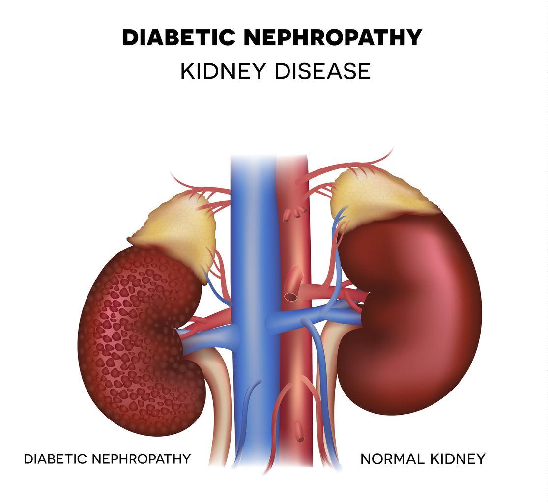 tratamiento de la nefropatía diabética