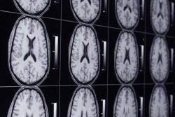 """""""La acumulación en el cerebro de gadolinio no provoca deterioro cognitivo"""