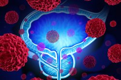"""""""Hallan un método un 33 por ciento más eficaz para detectar el cáncer de próstata"""