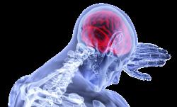 """""""Crean un atlas de los vasos sanguíneos que proporciona información sobre enfermedades cerebrales"""
