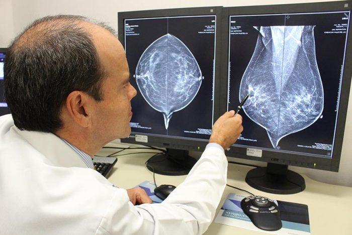 Cancer hormonal de mama, Alăptarea și tratamentul cancerului