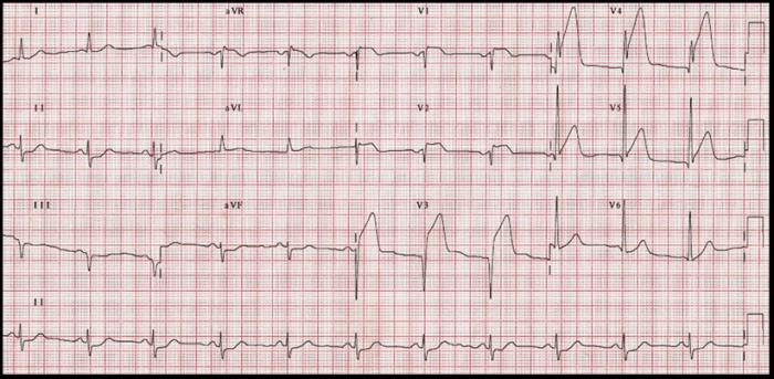 electrocardiograma-infarto