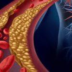 arterioesclerosis subcl´s