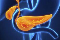 factores preoperatorios cáncer páncreas