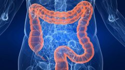 cáncer de colon pediátrico