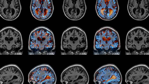 """""""Identifican una nueva diana cerebral para el tratamiento del Alzheimer y el deterioro cognitivo"""