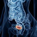 síntomas urinarios mujer (STUI)