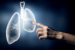 nuevo método para detectar el cáncer cribado del cáncer de pulmón