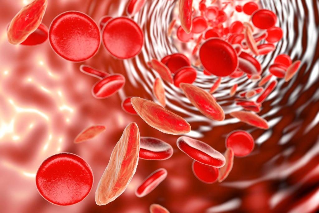 Resultado de imagen para sufre anemia 29 por ciento de mujeres