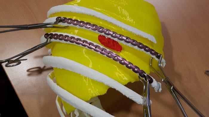 Impresión en 3D aplicada a cirugía torácica.