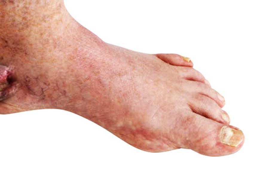 diabetes de pie de charcot
