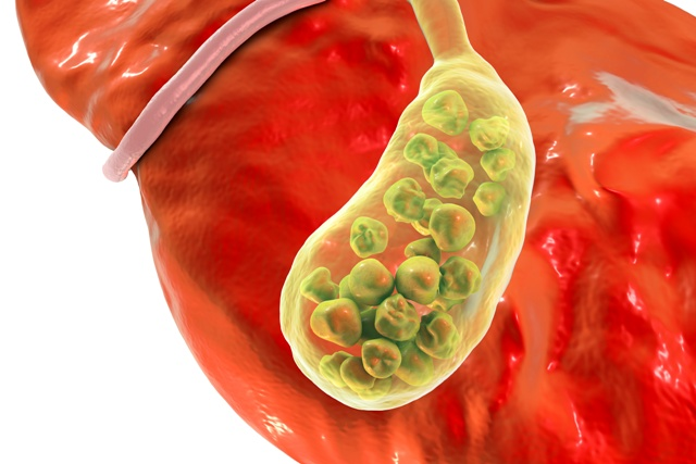 microbiota vesícula biliar