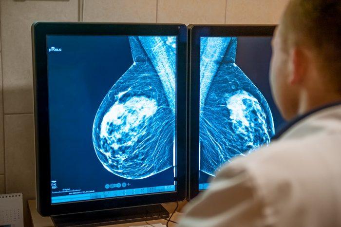 cáncer de mama alteración