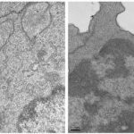 Células tumorales_inmunoterapia