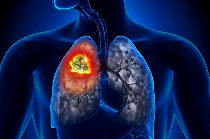 El 45% de los pacientes con cáncer de pulmón nunca ha fumado - El médico  interactivo