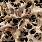 ostoporosis
