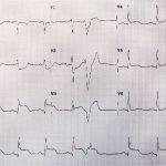 revascularización coronaria
