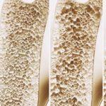 El 20 de octubre se conmemora el Día Mundial de la Osteoporosis.