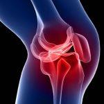 La SER analiza las herramientas de medición en Reumatología. Imagen de recurso