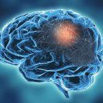 enfermedad neurodegenerativa