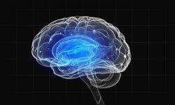 trastornos cerebrales