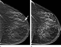 mapa detallado del cáncer de mama