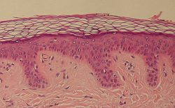 El microbioma de la dermis