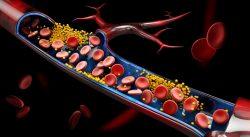 dislipemia