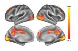 corteza prefrontal medial