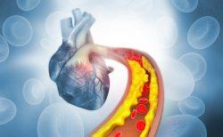 alirocumab reduce las lipoproteínas