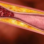 Las dislipemias determinan el papel causal del colesterol malo