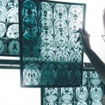 escaner para valorar desarrollo del alzheimer
